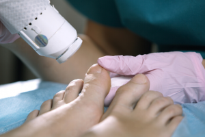 fungal nail laser treatment southport 1